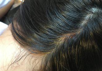 頭皮から脂っぽい臭いがする原因とは?正しい対策をご紹介
